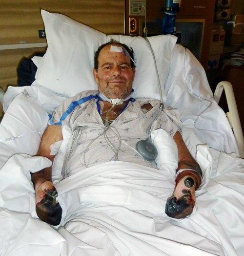 O norte-americano Paul Gaylord contraiu a peste bubônica em 2014, e teve que passar quase um mês no hospital em tratamento. Ele perdeu os dedos das mãos e dos pés devido a gangrena dos bubões. Hoje em dia a peste bubônica é tratada com antibióticos pesados.