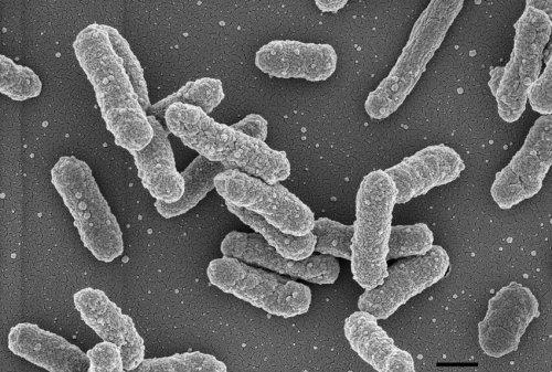 Yersinia pestis, bacilos da peste pneumônica.